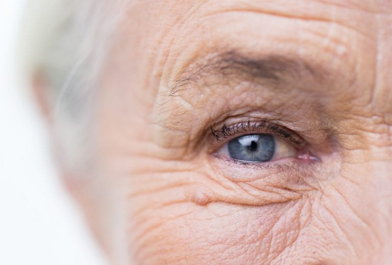 Learn more about Eyelid Surgery