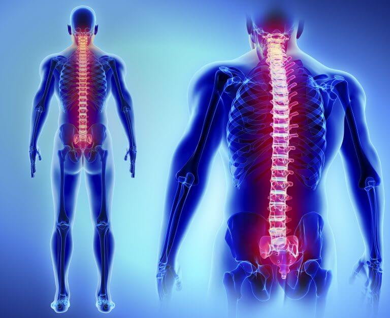 Learn more about spinal surgery
