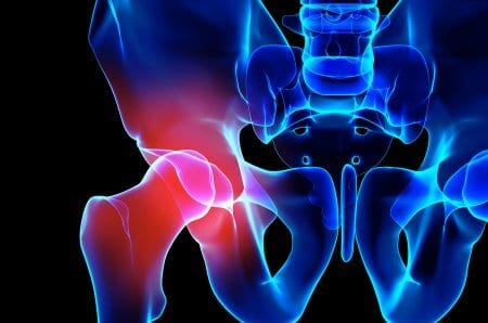 Hip Replacements at Centric Health Surgical Centre Toronto